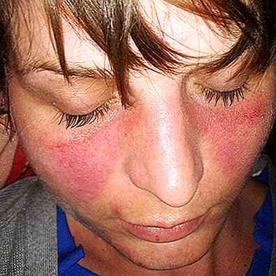 Poți pierde în greutate cu lupus Lupusul eritematos sistemic - boala autoimuna
