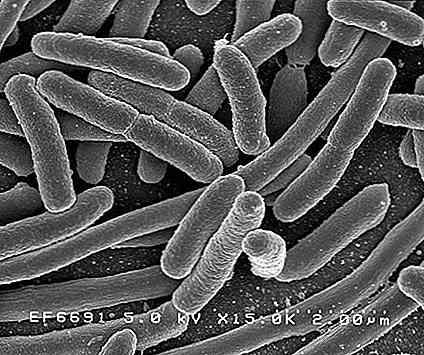Le cellule eucariote e procariote 17